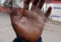 कड़ाके की ठंड के बीच पटना में धरना दे रहे नियोजित शिक्षक अभ्यर्थियों पर पुलिस ने बरसायी लाठियां
